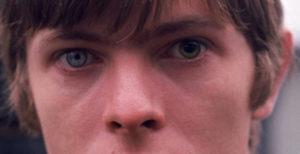 Dos ojos de distinto color