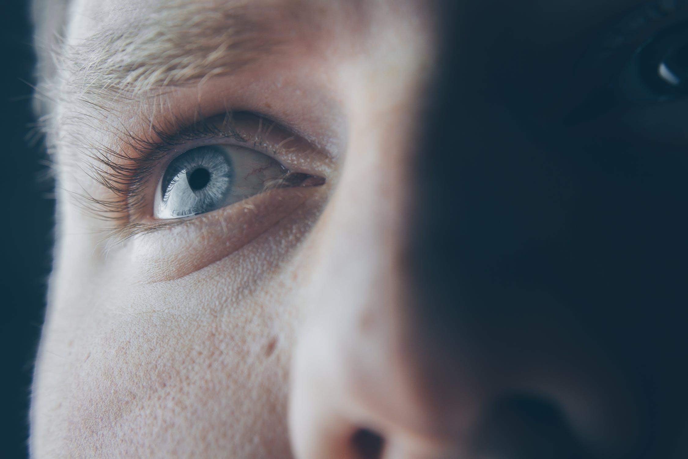 0124570734 Que se nos puedan aclarar los ojos, tiene un carácter benigno. El color de  nuestros ojos está determinado por la cantidad y la distribución de  melanina en ...